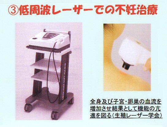 低周波レーザーでの不妊治療