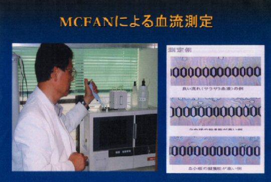MCFAN